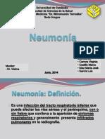 seminarioneumonia-140802153610-phpapp02.pdf
