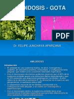 4. J. Amiloidosis-Gota