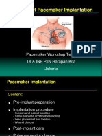 6. Pacemaker Implant