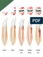 Periodontitis Gingivitis