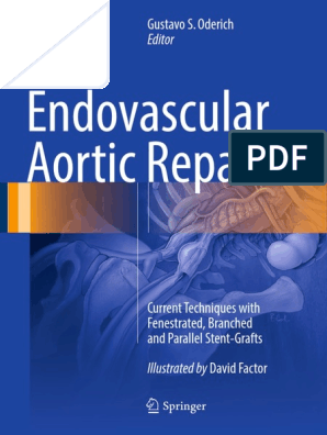 Endovascular Aortic Repair Current Techniques With