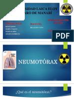 Lesiones Destructivas Del Perénquima Pulmonar