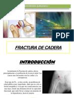 3. FX. CADERA.pptx