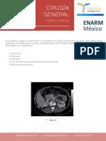 caso 2 (1).pdf