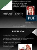 seminariolitiasisrenal-130519151711-phpapp02