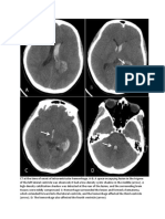CT at the Time of Onset of Intraventricular Hemorrhage