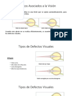 Defectos Visuales