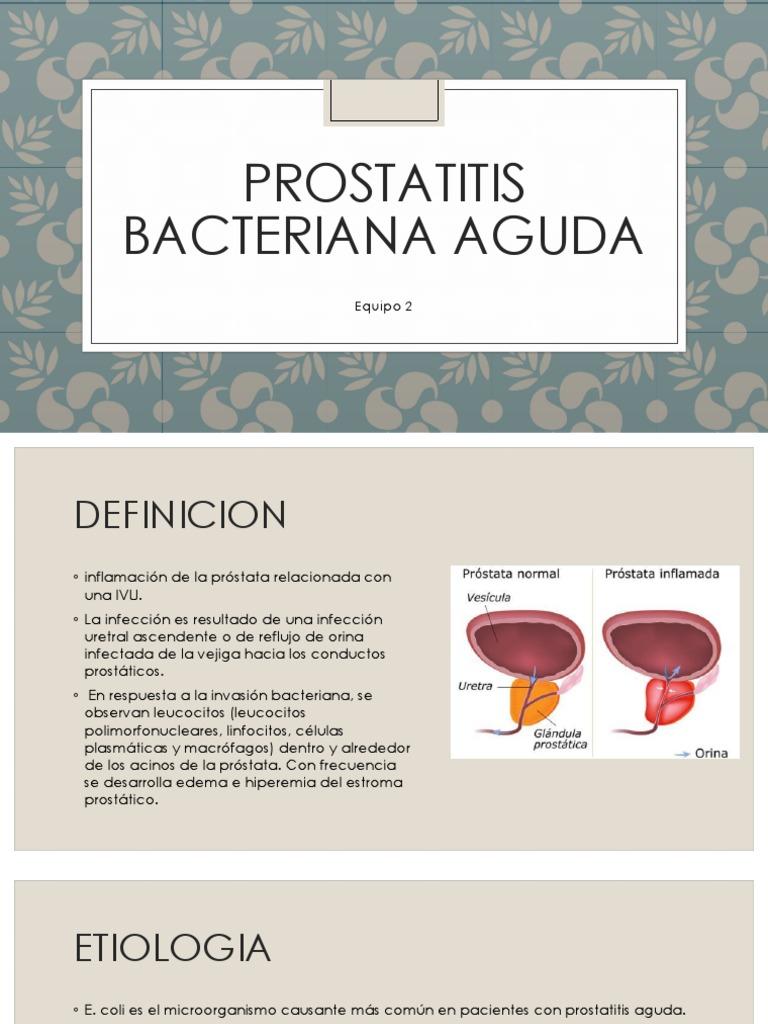 células de prostatitis y escherichia coli