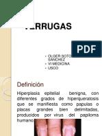verrugas-140609084714-phpapp01