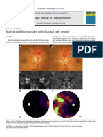 Neuritis Optic Case Report