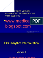 interpretasi ECG Abnormal