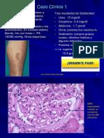 3. Clase Glomerulonefritis Primaria 2017
