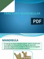 Fractura Mandibular Diapos