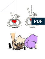 Reanimación Cardiopulmonar Cerebral.docx