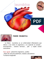 fiebrereumticaaguda2010-170925144527