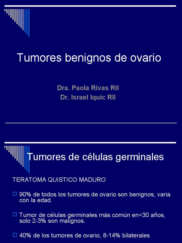 tumor cabal linear unit los ovarios sintomas