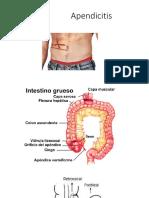 apendicitis-150709005040-lva1-app6891