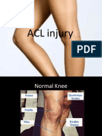 Anteriorcruciateligamentinjury 090619120341 Phpapp01 121206081353 Phpapp02