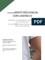 Tratamento Frecuencial Com Laseracus