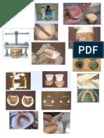 Prostodoncia Pasos en El Laboratorio.