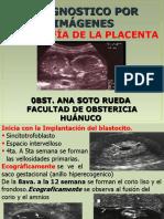PLACENTA II UNIDAD.ppt
