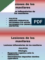 Lesiones de Los Maxilares 2