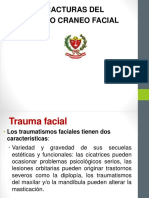 5 Fractura Maciso Facial