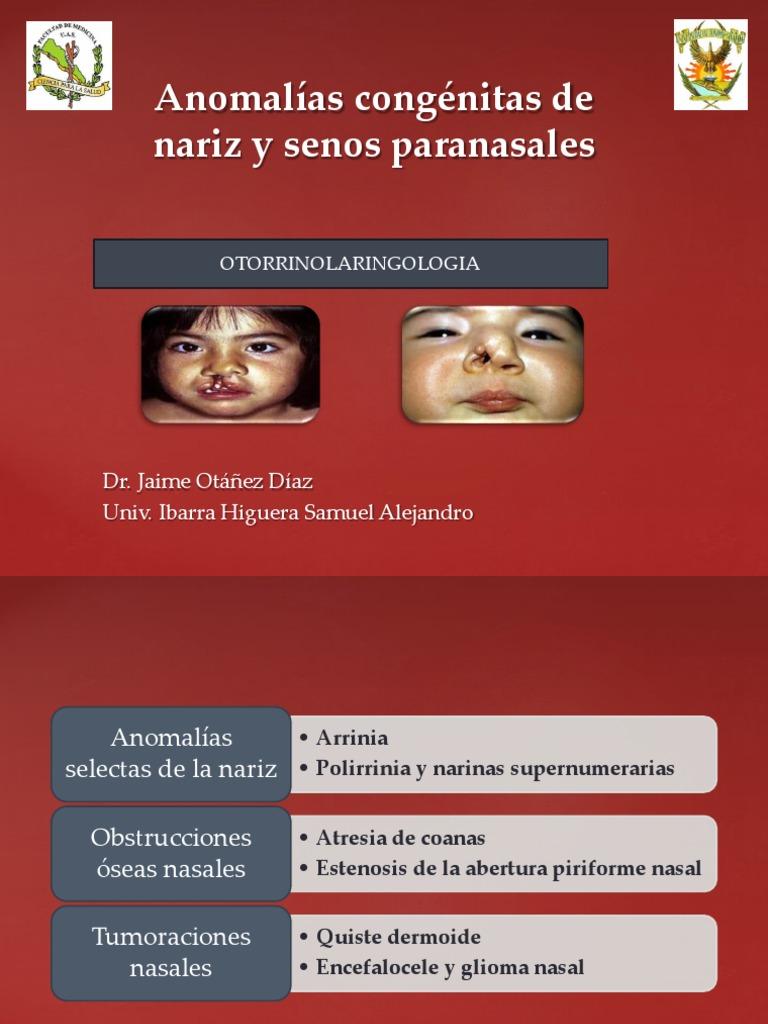 Anomalías Congénitas de Nariz