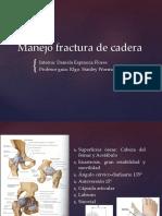 Manejo Fractura de Cadera