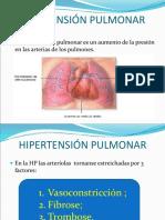 2 -Enfermedades Vasculares Del Pulmón