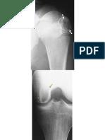 Condroblastoma.pptx