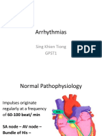 Arrhythmias 2