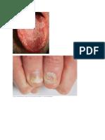 Gambar Psoriasis