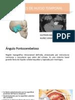 Schwannoma Vestibular