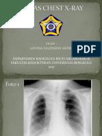 Tugas Chest X-ray - Lovina