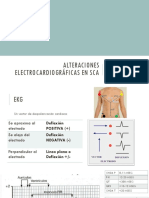 Alteraciones electrocardiográficas en SCA.pptx