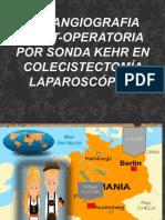 Presentación1 Colangiografia Post-operatoria por sonda kehr