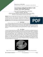 Mucinous Adenocarcinoma Arising From Mature Cystic