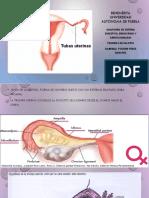 trompas uterinas