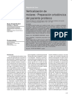 verticalizacion_de_molares-preparacion_ortodoncica_del_paciente_protesico.pdf;filename= UTF-8''verticalizacion de molares-preparacion ortodoncica del paciente protesico.pdf