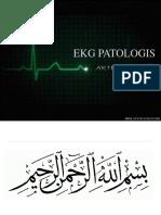 EKG PATOLOGIS.pptx