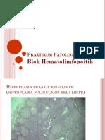 2.2.5 Histopatologi Limfadenopati