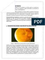 CORIODORRETINITIS SANCHEZ.docx