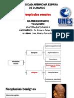 Neoplasias renales, patologías de vejiga y próstata