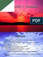 Vasculitis y Pulmon