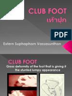 CLUB-FOOT