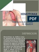 Hemotorax Pam