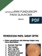 FDL - Gambaran Funduskupi Pada Glaukoma