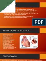 Infarto Agudo Al Miocardiosubir