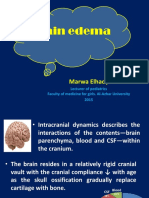 brainedema-160314142234(5)